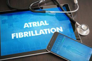atrial fibrillation image