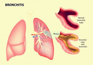 Burial insurance with bronchitis