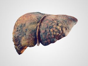 burial insurance with Cirrhosis of the liver