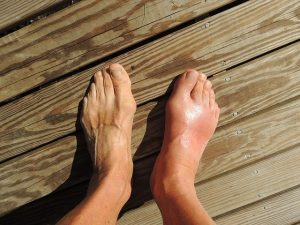 burial insurance with gout