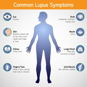 life insurance with lupus