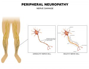 funeral insurance with Neuropathy