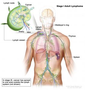 burial insurance with Non-Hodgkin's Lymphoma