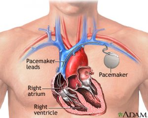 burial insurance with a pacemaker