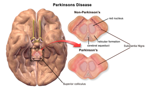 funeral insurance with Parkinson's disease