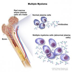 Burial insurance with multiple myeloma