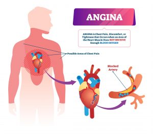 Funeral insurance with Angina