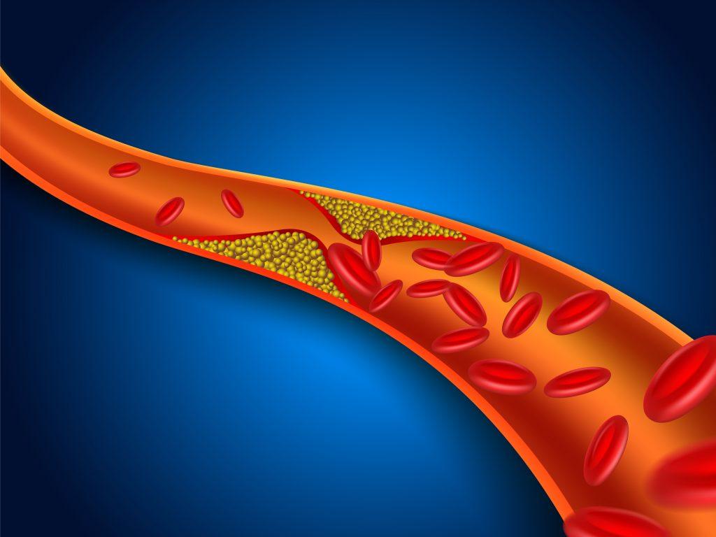 vein with blockage